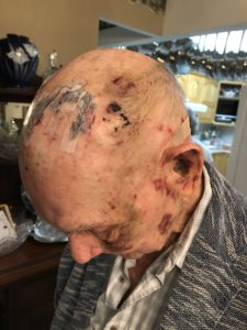 Image of a beaten man with injuries to his head
